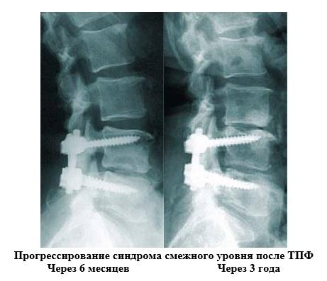 Спондилодез позвоночника, в том числе задний, передний: что это такое, особенности в шейном и других отделах