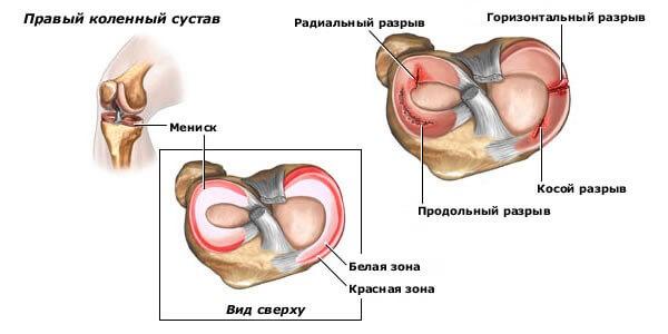 Повреждение медиального мениска коленного сустава: симптомы, лечение