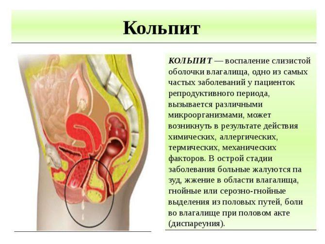Кольпит: причины, симптомы, диагностика и лечение