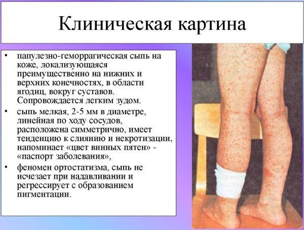 Ревматизм суставов — симптомы и лечение