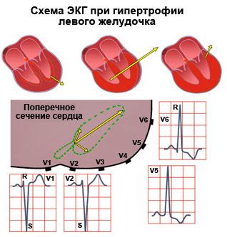 Гипертрофия правого желудочка на экг: что это такое, причины и симптомы, лечение и прогноз жизни