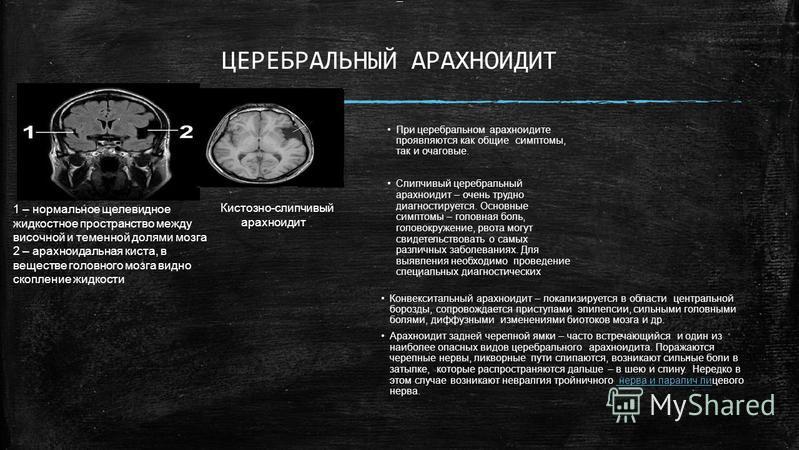 Арахноидальная киста головного мозга: причины заболевания, основные симптомы, лечение и профилактика