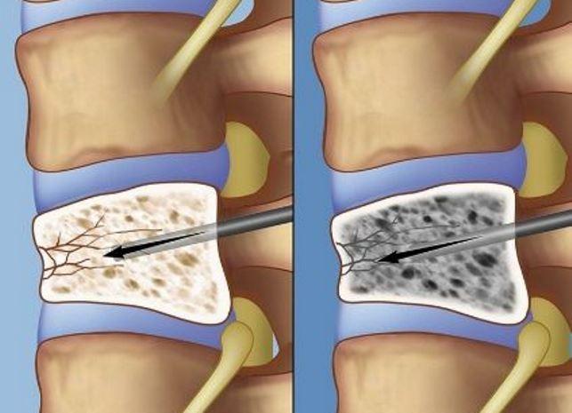 Сроки и методы реабилитации после перелома позвоночника