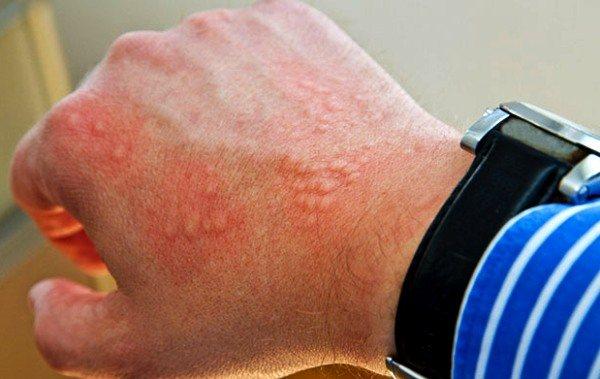 Аллергическая крапивница у детей: причины, лечение и диета