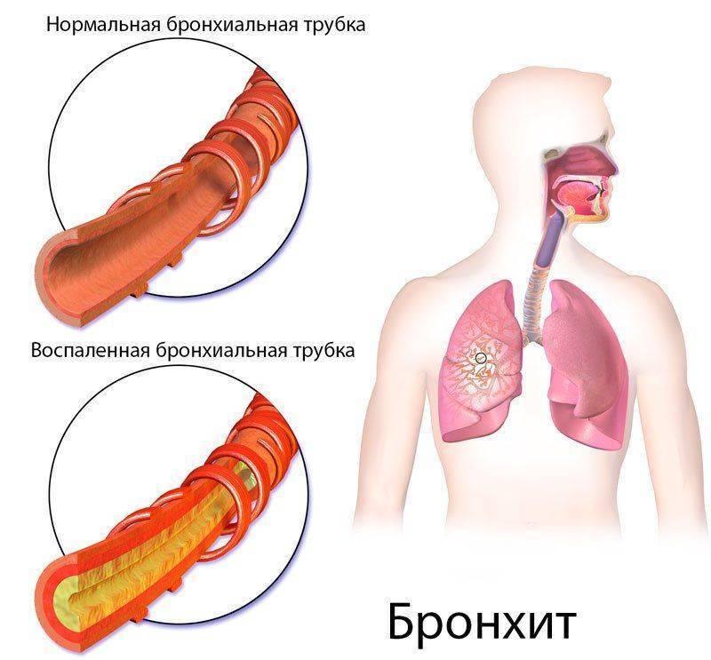 Как отличить пневмонию от туберкулёза — в чем сходство и различие патологий?