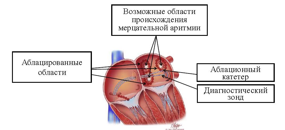 Мерцательная аритмия сердца: описание, причины, симптомы, опасность и лечение