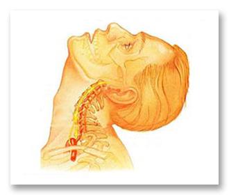 Как лечить шейный остеохондроз, какие средства самые эффективные?