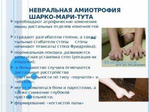 Невральная амиотрофия шарко–мари–тута симптомы, лечение, профилактика, причины заболевания