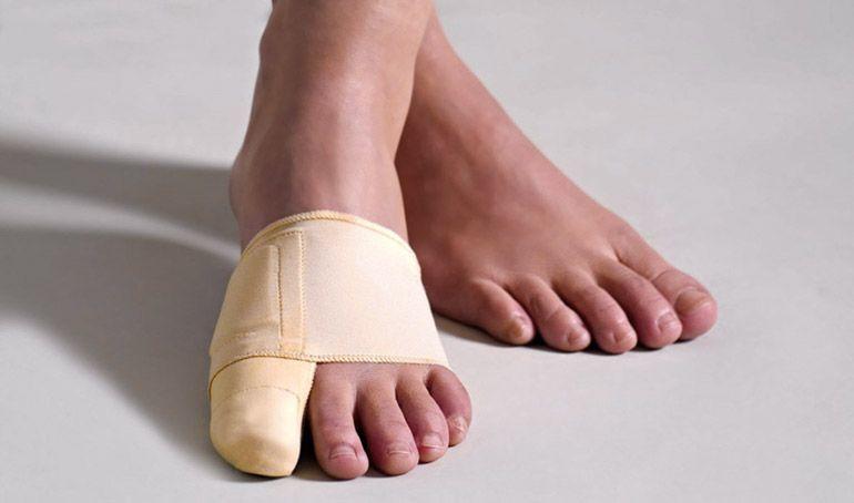 Подбираем фиксатор для косточки на большом пальце ноги