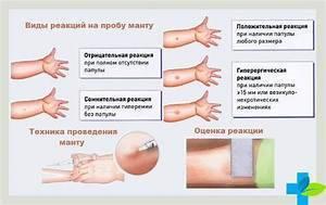Необходимо знать, в каком возрасте делают манту детям. график диагностики на туберкулез