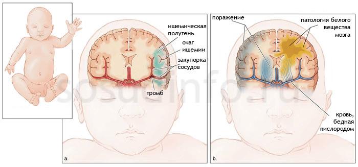 Гипоксия плода: последствия для ребенка