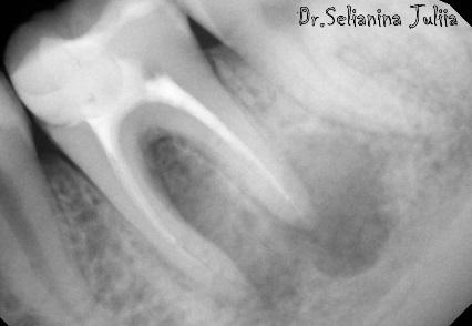 Гранулема корня зуба: хирургическое и консервативное лечение