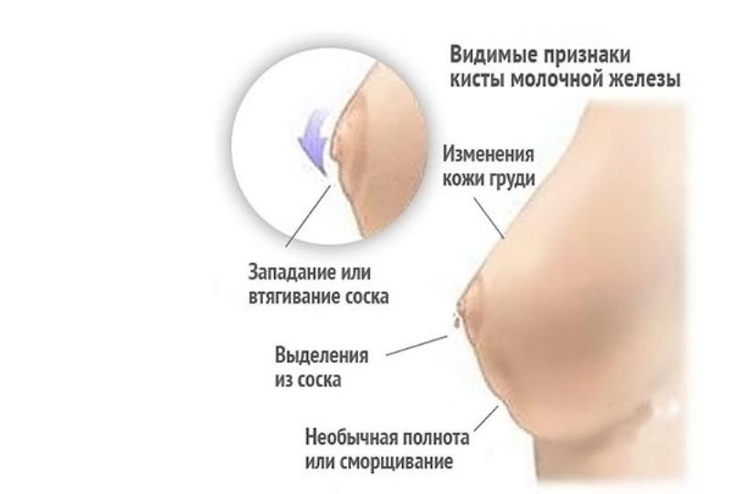 Выделения из грудных желез при беременности | метки: какой, срок, молоко, какой, срок