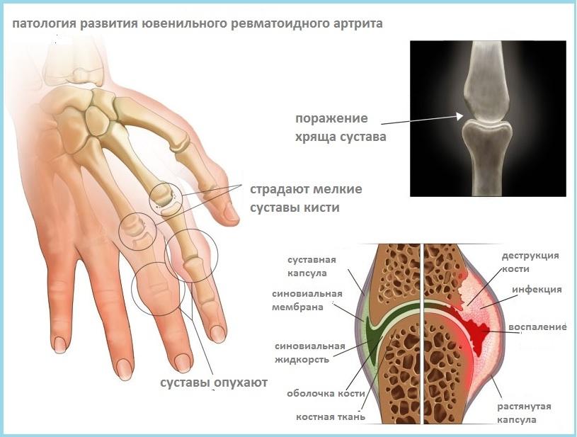 Ревматоидный артрит - симптомы, лечение, народные средства
