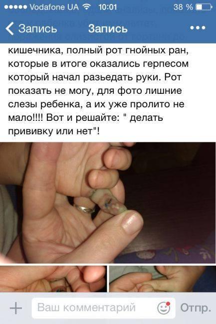 Вакцинация новорожденных от туберкулеза