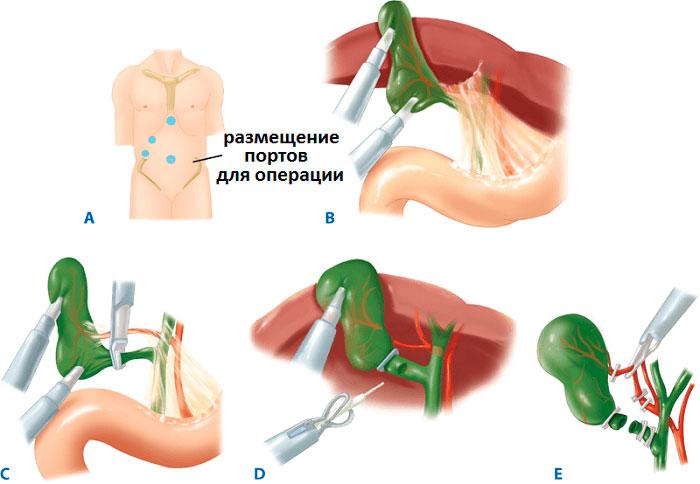 Взвесь в желчном пузыре: причины, симптомы, лечение. появление сладжа в желчном пузыре.