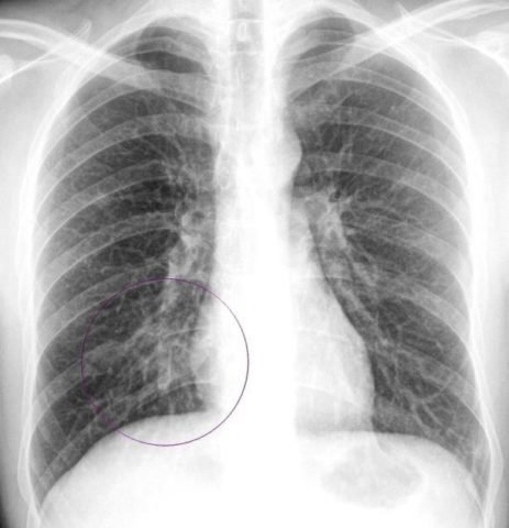 Пневмония у недоношенных детей