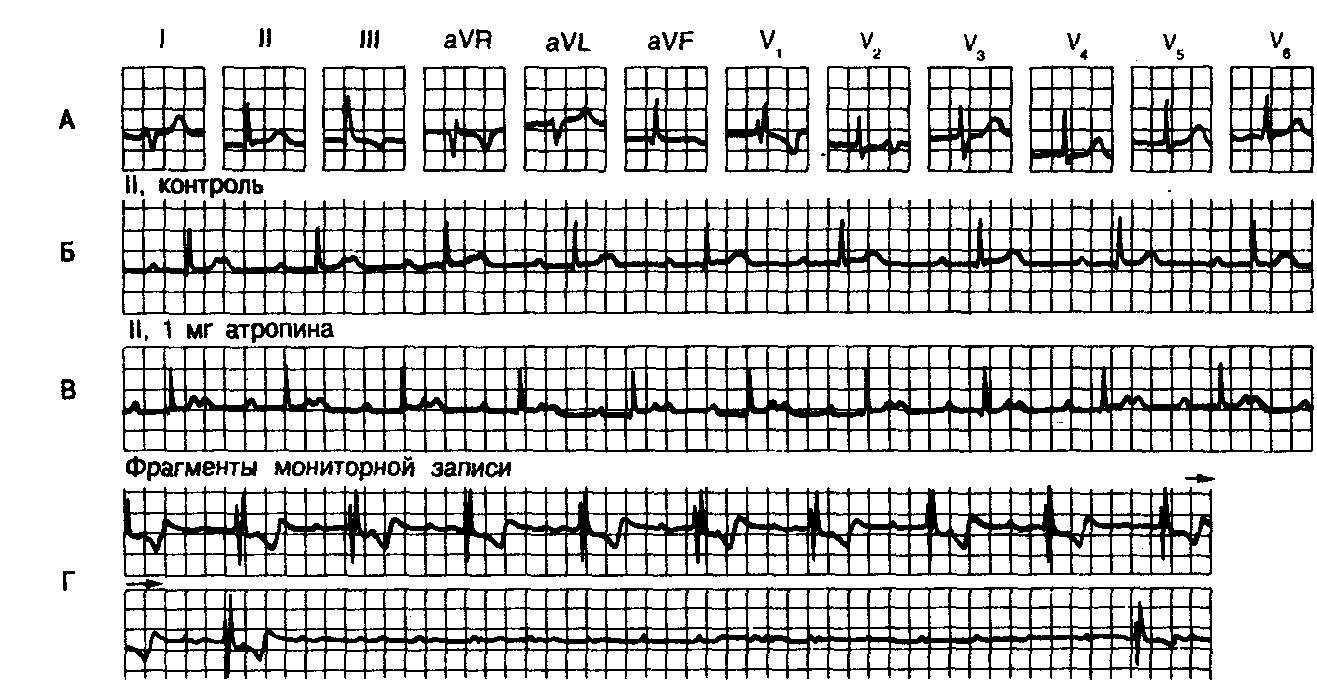 Синоатриальная блокада. атриовентрикулярная блокада (а-в блокада)