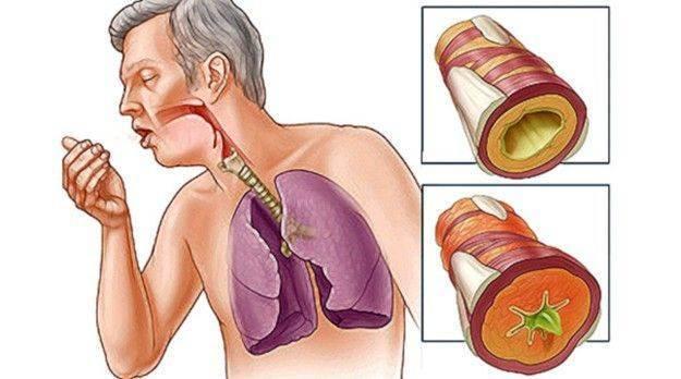 Мукалтин или бромгексин при бронхите