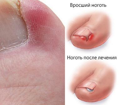 Лечение вросшего ногтя на большом пальце ноги в домашних условиях народными средствами. онихокриптоз.