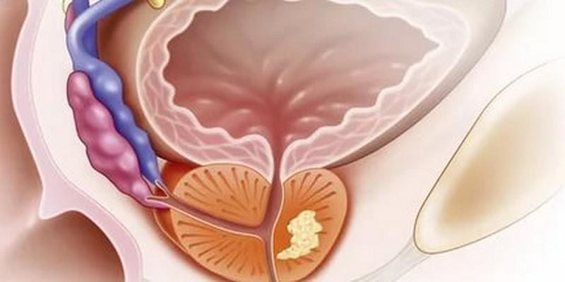 Почему возникают выделения из уретры у женщин, и как их лечить