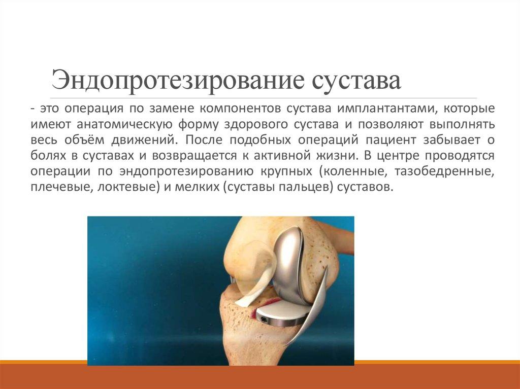 Поэтапная реабилитация после операции по эндопротезированию тбс — залог успеха