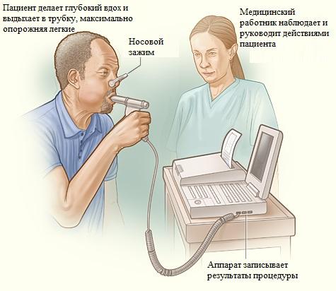 Проведение спирометрии при бронхиальной астме