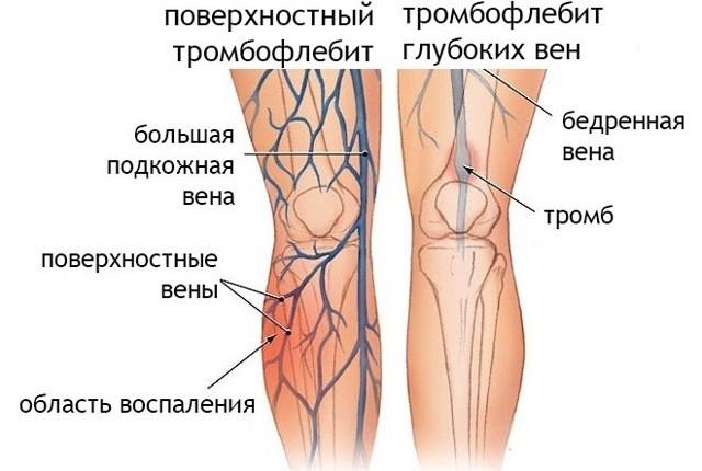 Тромбофлебит нижних конечностей: симптомы, лечение
