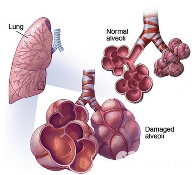 Идиопатический фиброзирующий альвеолит легких – можно ли вылечить заболевание?