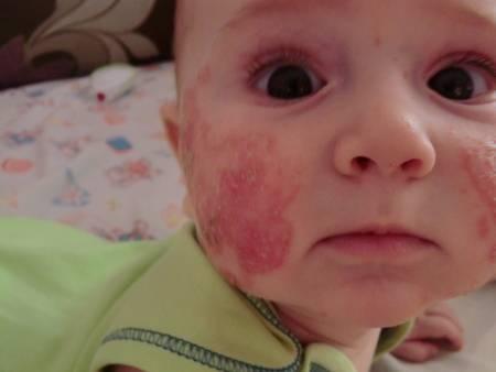Прививка бцж — осложнения и последствия