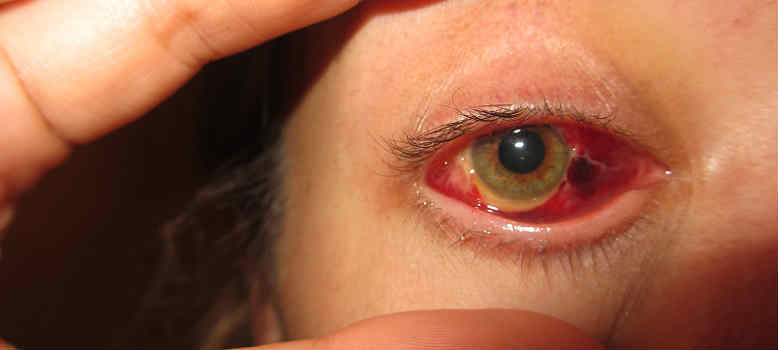 Варианты проведения операции на сетчатке глаза