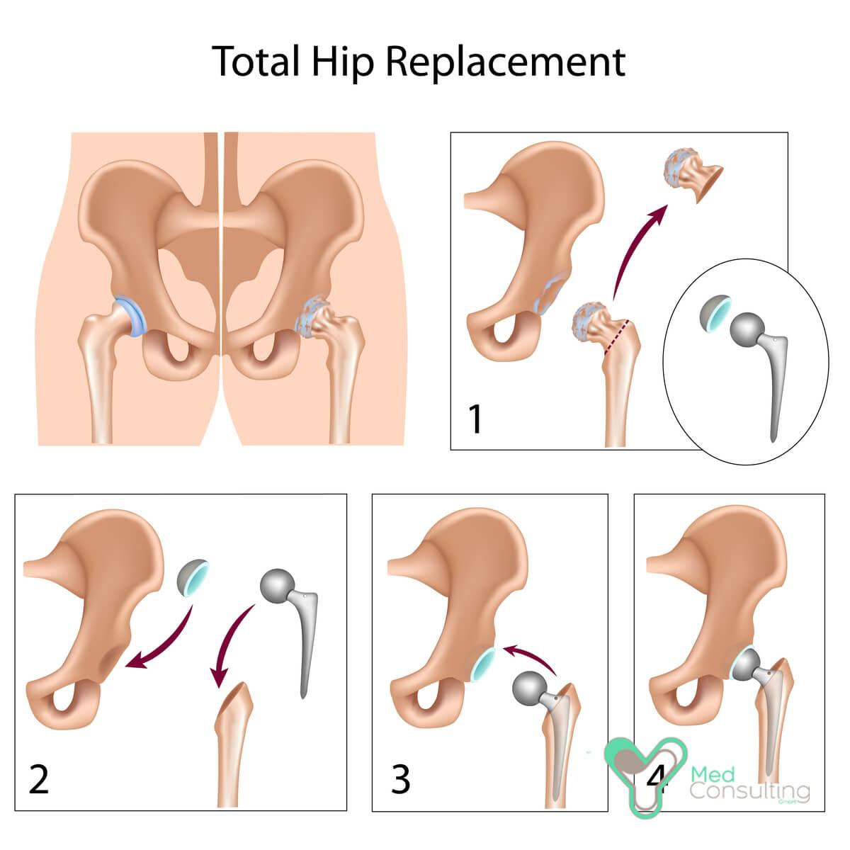 Противопоказания к замене сустава абсолютные и относительные: почему не допускают к операции