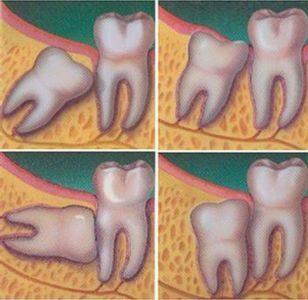 Удаление зуба мудрости заживление