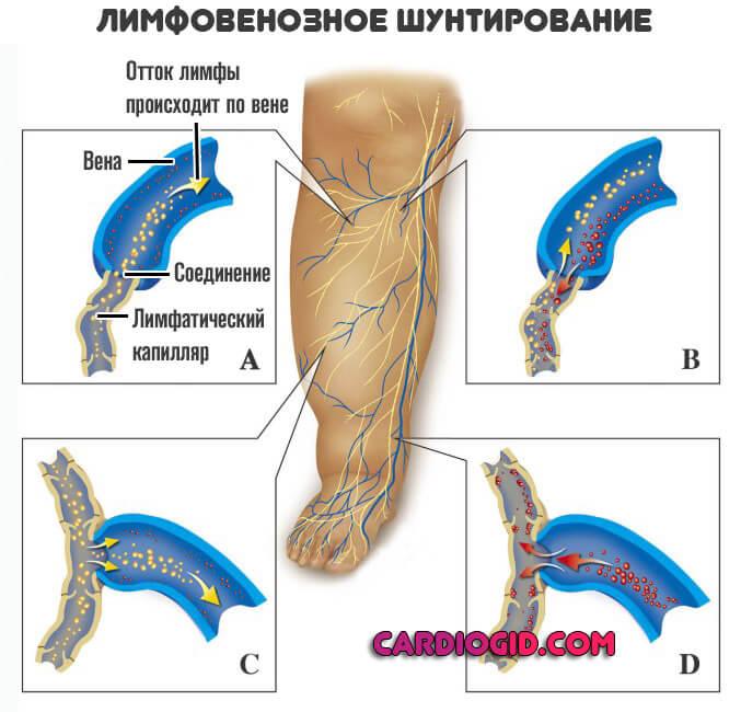 Лимфостаз нижних конечностей: причины и особенности лечения