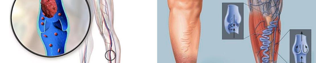 Тромбофлебит поверхностных вен нижних конечностей: признаки, особенности и лечебные методики