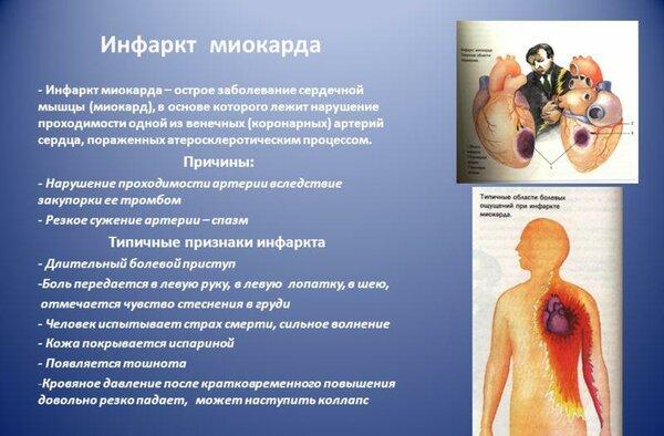 Прединфаркт: симптомы и первые признаки у мужчин и женщин, причины, диагностика и лечение