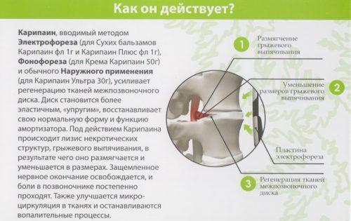 Карипазим мазь: инструкция и рекомендации по применению при грыже позвоночника, эффективность, цена и отзывы
