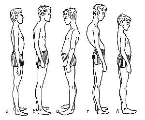 Бочкообразная деформация грудной клетки