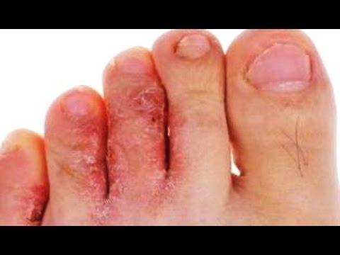 Эпидермофития стоп: причины, симптомы, диагностика и лечение