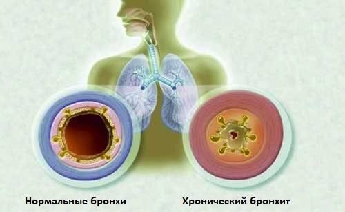 Лечение бронхита у детей в домашних условиях народными средствами: лечение обструктивного и других видов бронхиальной астмы