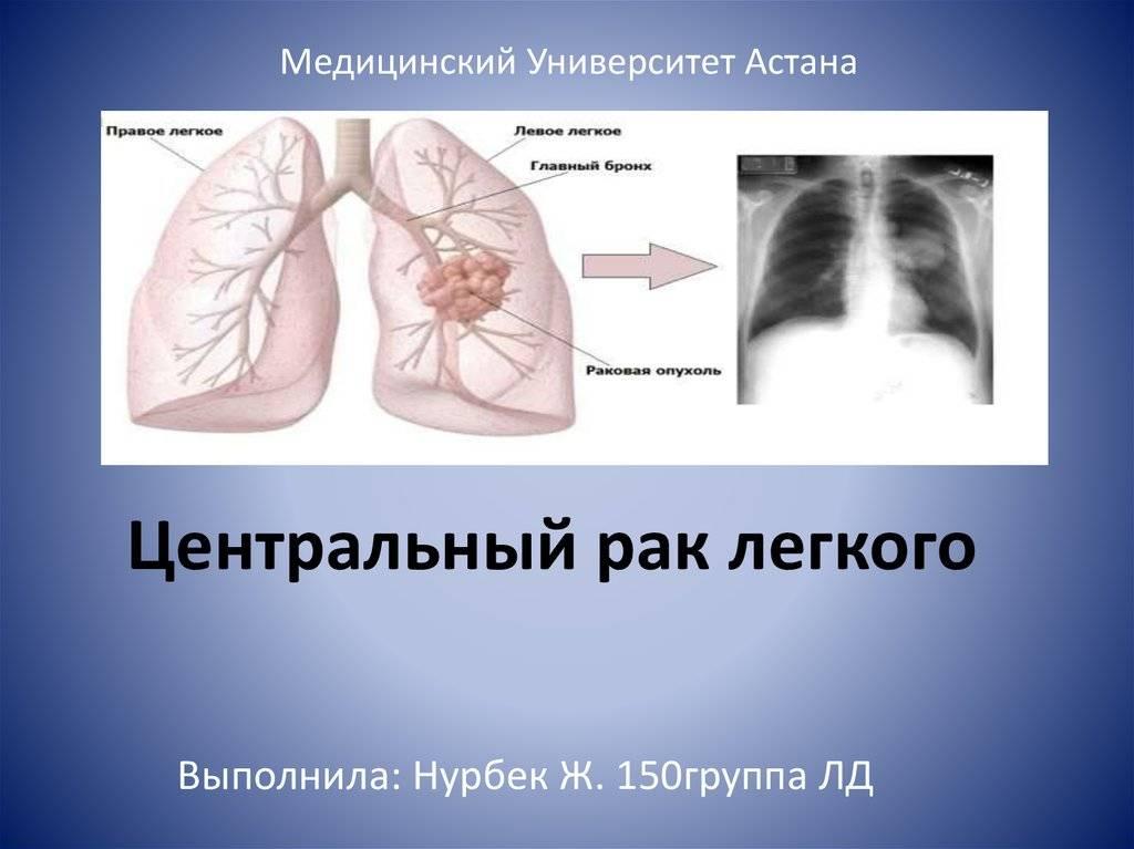 Чем различаются туберкулез легких и рак легких