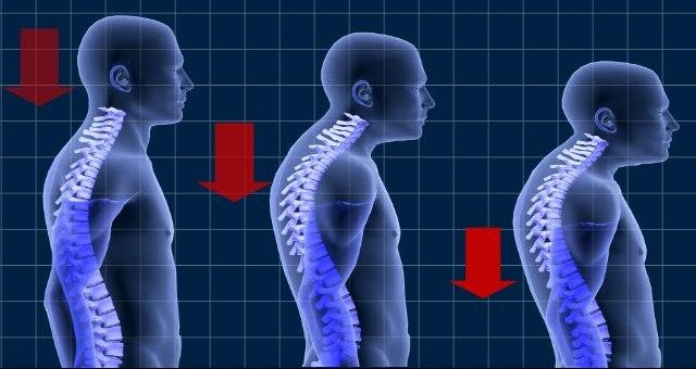 Причины и особенности лечения шейного кифоза у детей и взрослых