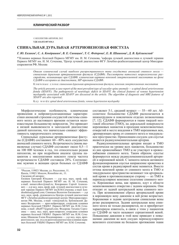 Дуральная артериовенозная фистула