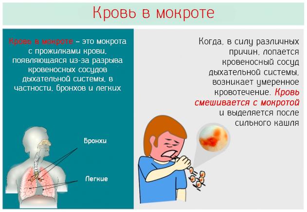 Кашель с кровью: о чем говорит, разбор причин, проявления, диагностика, лечение