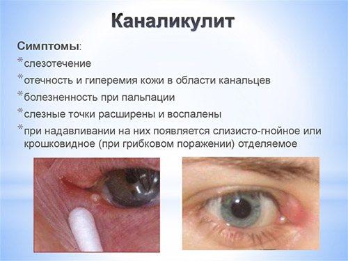 Заболевания слезного аппарата.