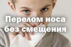 Перелом костей носа: причины, симптомы, лечение