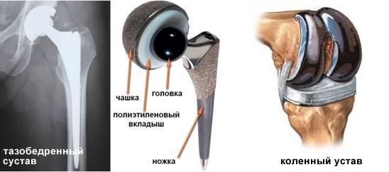Эндопротезирование коленных и тазобедренных суставов в германии: клиники, врачи, цены и технологии