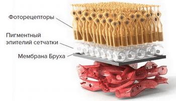 Макулодистрофия сетчатки глаза: причины и лечение