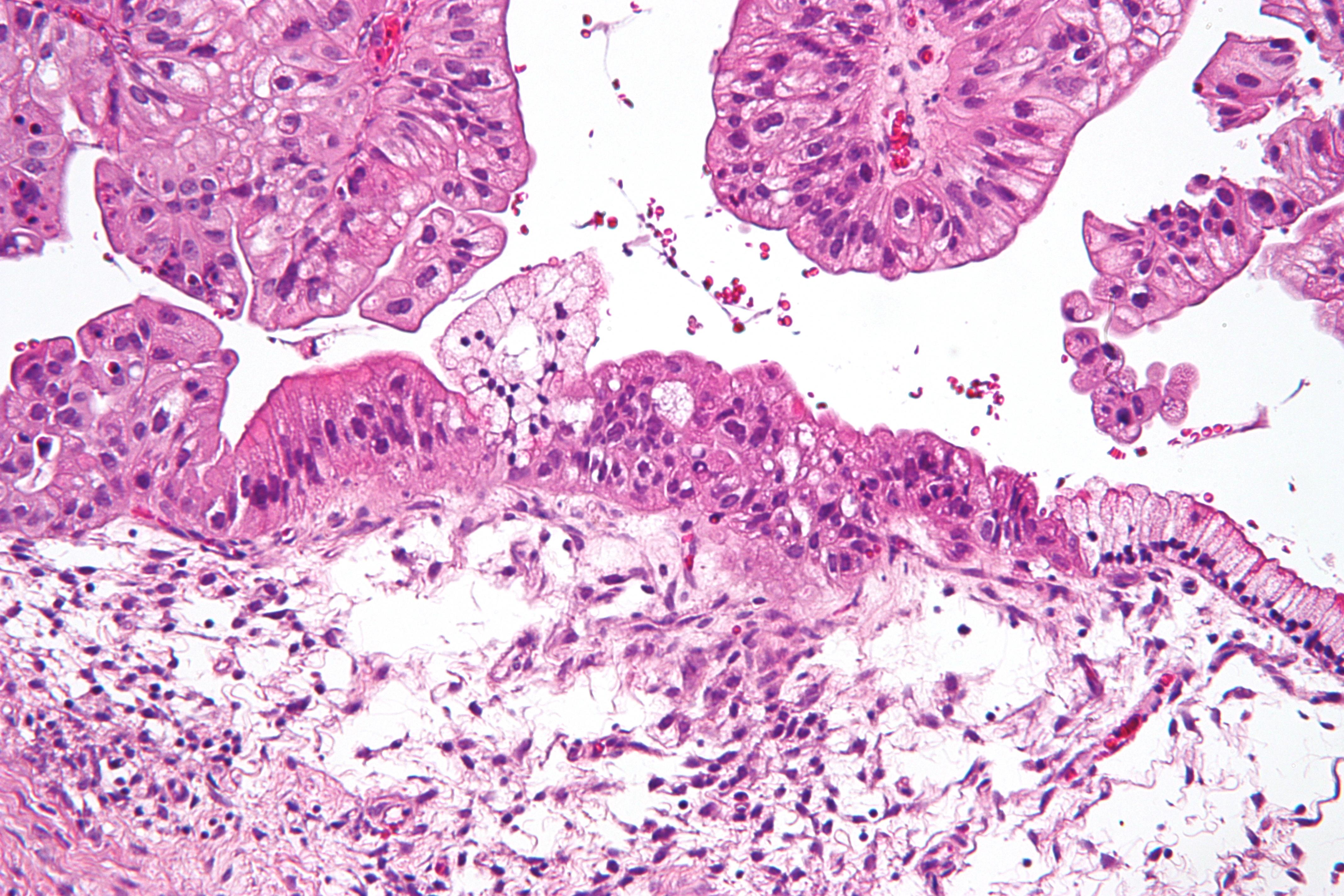 Метастазы в брюшной полости симптомы