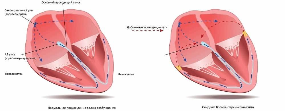 Чем опасен синдром вольфа-паркинсона-уайта (синдром wpw)